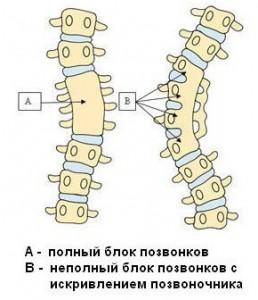 Аномалии развития позвоночника