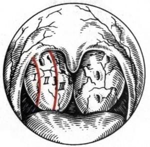 Гипертрофия лимфаденоидной ткани глотки