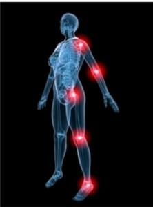 Хроническое перенапряжение суставного хряща