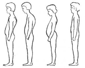 Изменение величины физиологических изгибов позвоночника