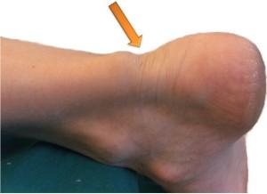 Надрыв и разрыв ахиллова сухожилия