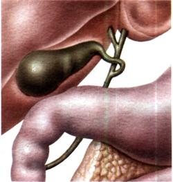 Отдельные синдромы при заболеваниях системы мочевыделения