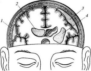 Сдавление головного мозга