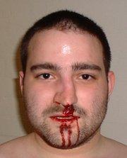 Травмы носа.