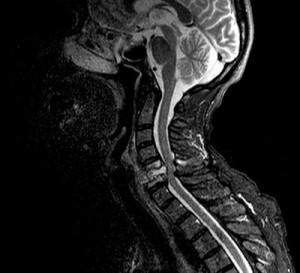 Спинной мозг.