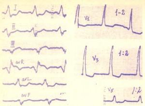 Клинико-электрокардиографические синдромы предвозбуждения желудочков