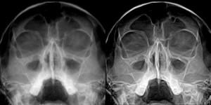 Параклинические методы диагностики