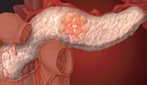 Синдром недостаточности кишечного всасывания